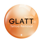 TATTOO-REMOVAL-GLATT-Logo-FINAL