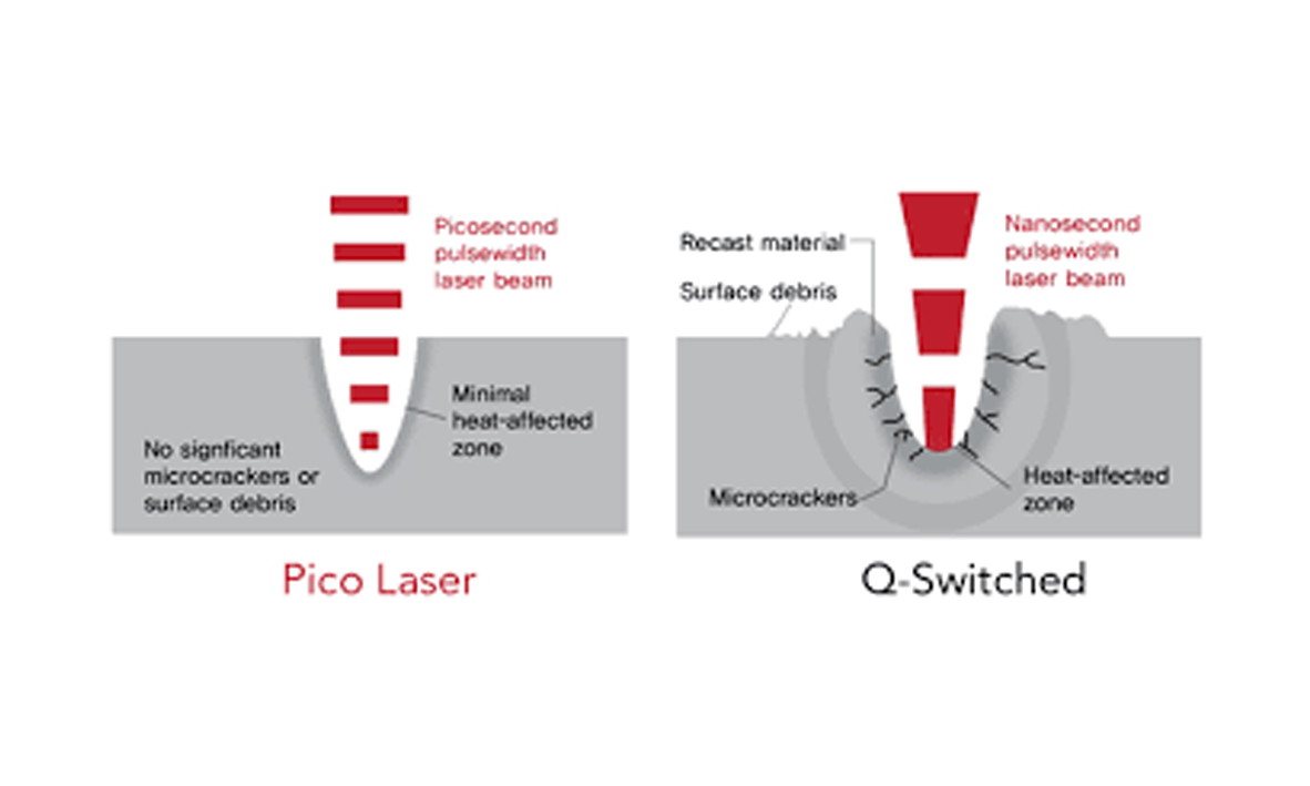 pico laser room 2